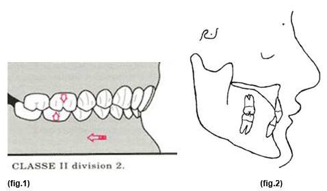 Convexidad facial + pacientes clase ii div 1