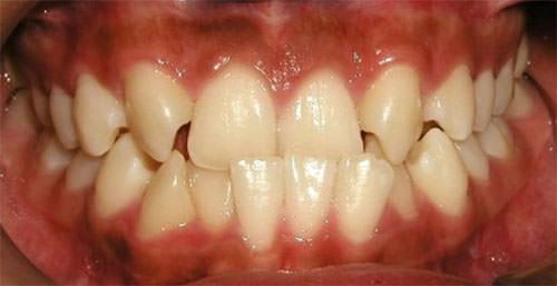 agenesia del diente lateral