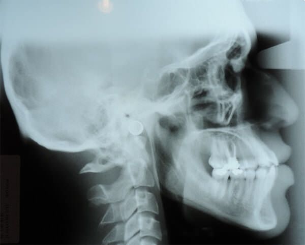 Fig 1. Paciente clase lll con prognatismo mandibular y retrusión maxilar