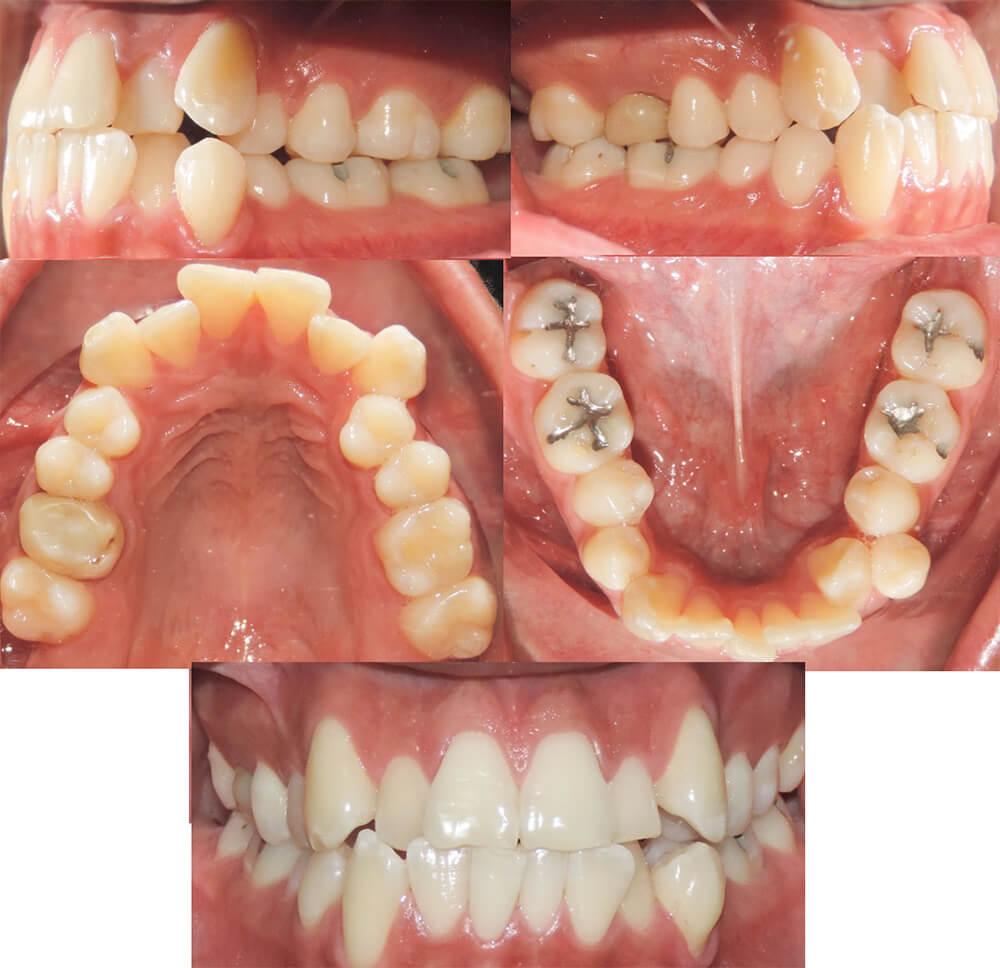 Fig 2. Aspecto intraoral del paciente antes del tratamiento: fotografía frontal laterales y arcada superior e inferior.