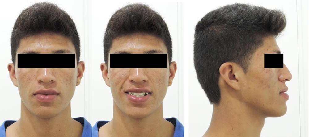 Fig 3. Aspecto facial del paciente antes del tratamiento: de frente en oclusión, sonriendo, de perfil en oclusión.