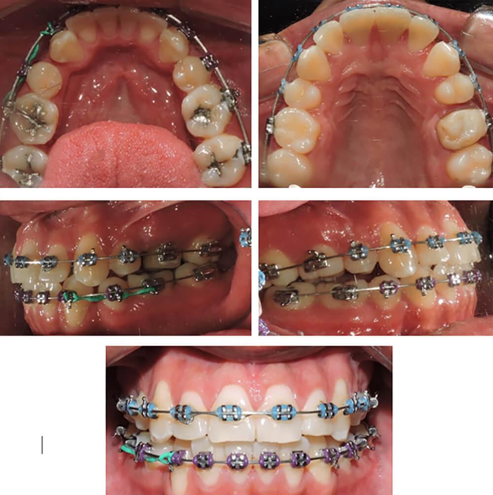 Fig 4. Fotografias intraorales paciente clase lll tratado con camuflaje (evolución durante el tratamiento).