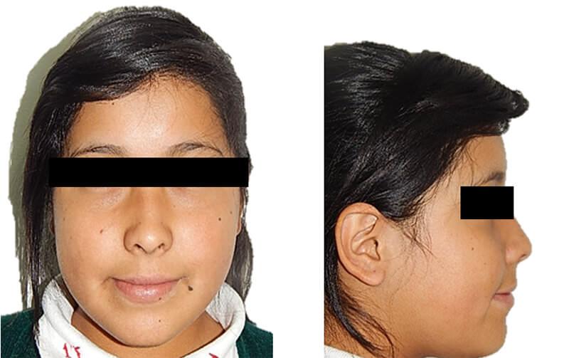 Fig 1. Extraoral de frente y perfil