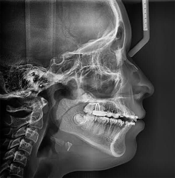 Fig 15. Radiografía lateral de cráneo de progreso