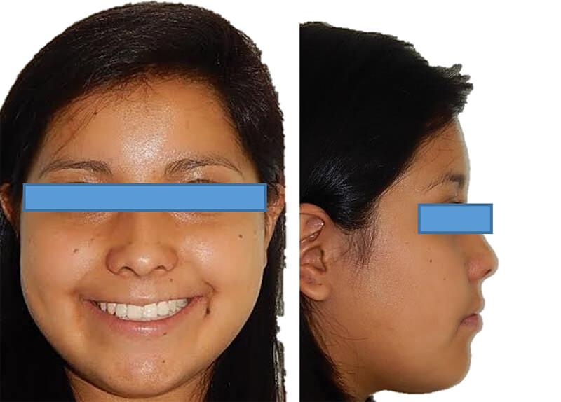 Fig 18. Extraoral de sonrisa y perfil