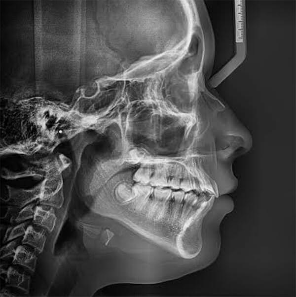 Fig 21. Radiografía lateral de cráneo final