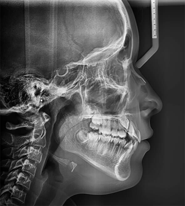 Fig 5. Radiografía lateral de cráneo